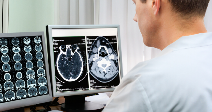 A male doctor in scrubs analyzing brain scans on his computer.