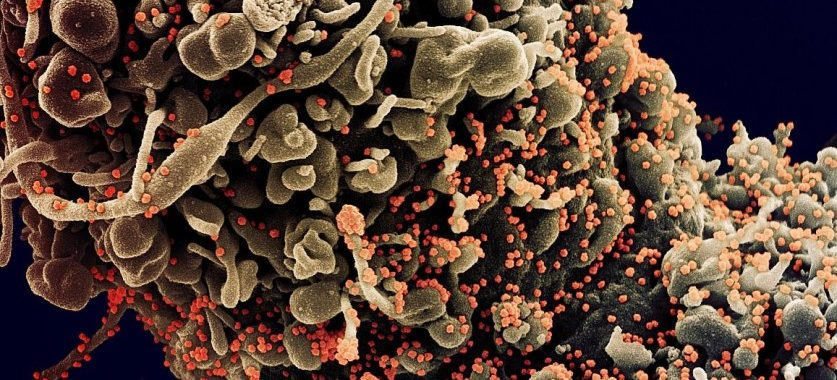 Colorized scanning electron micrograph of a cell showing morphological signs of apoptosis, infected with SARS-COV-2 virus particles (orange), isolated from a patient sample. Image captured at the NIAID Integrated Research Facility (IRF) in Fort Detrick, Maryland.