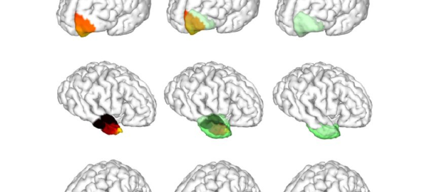 A grid of nine brains wit different portions highlighted in red, yellow, and green.